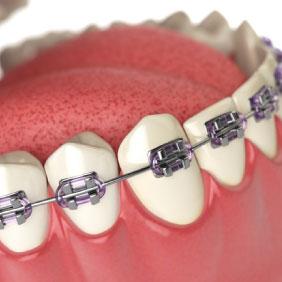 認定医による矯正歯科治療